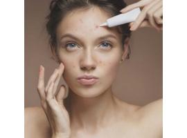 Акне в практике косметолога- эстетиста